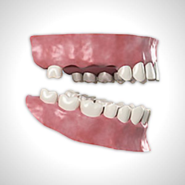 Zahnbegrenzte Lücke über drei Zähne