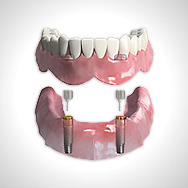 Zwei intraforaminale Implantate, die zur Aufnahme der Prothesenhalteelemente dienen, wurden eingesetzt